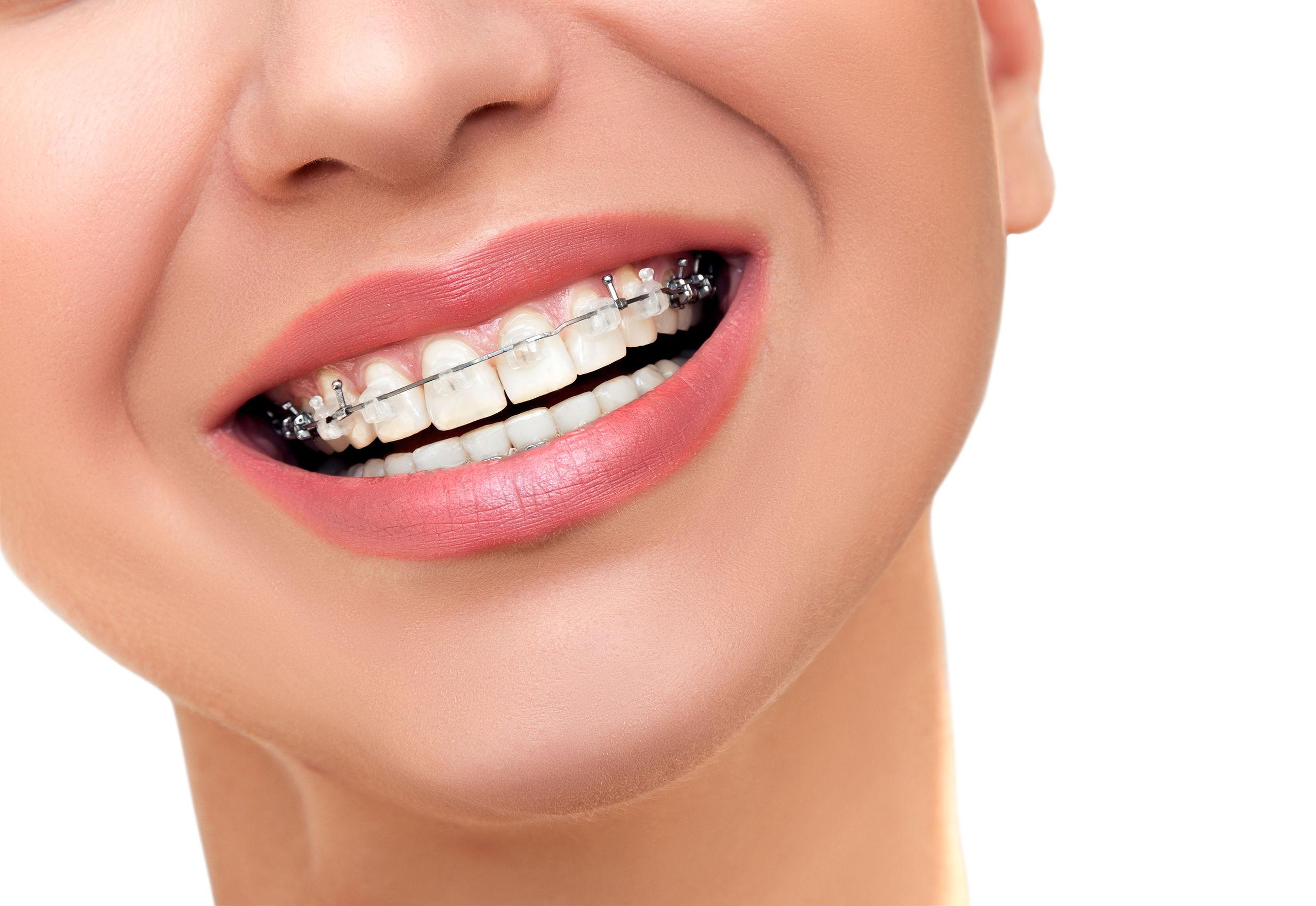 Ortodoncia Tradicional Clínica Pilar Rico