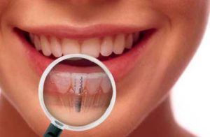 implante-dental-clinica-dental-pilar-rico