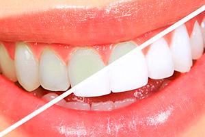 blanqueamiento dental clínica Pilar Rico