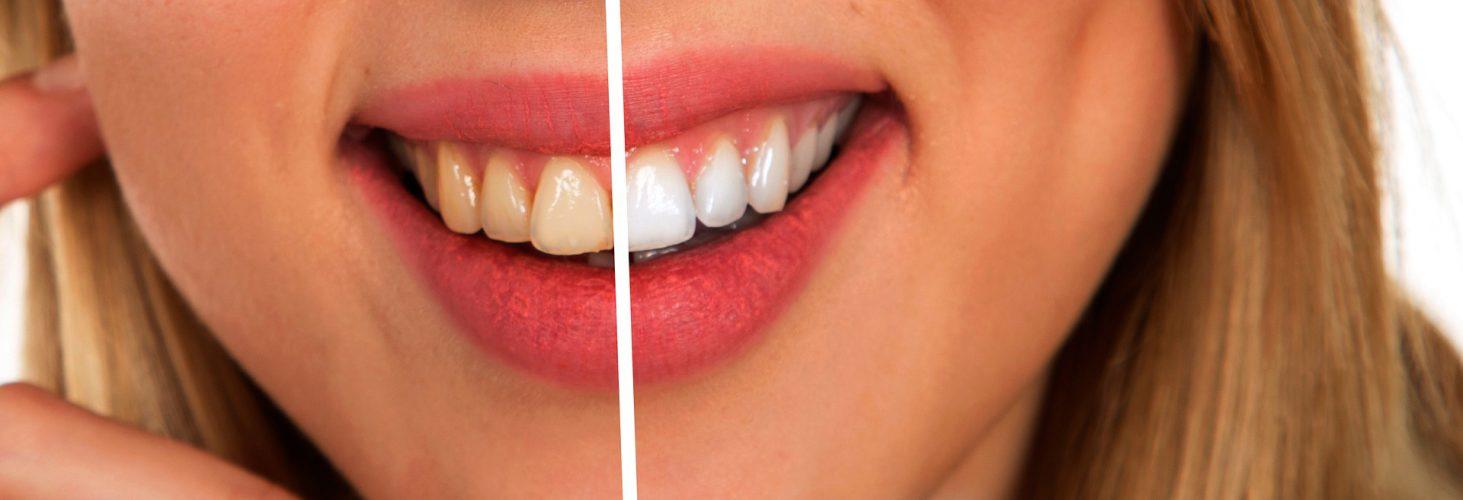 cuidar tu boca con tratamiento de blanqueamiento dental