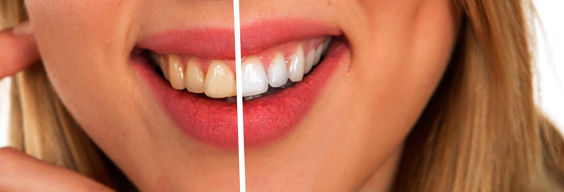 regalo con tu ortodoncia
