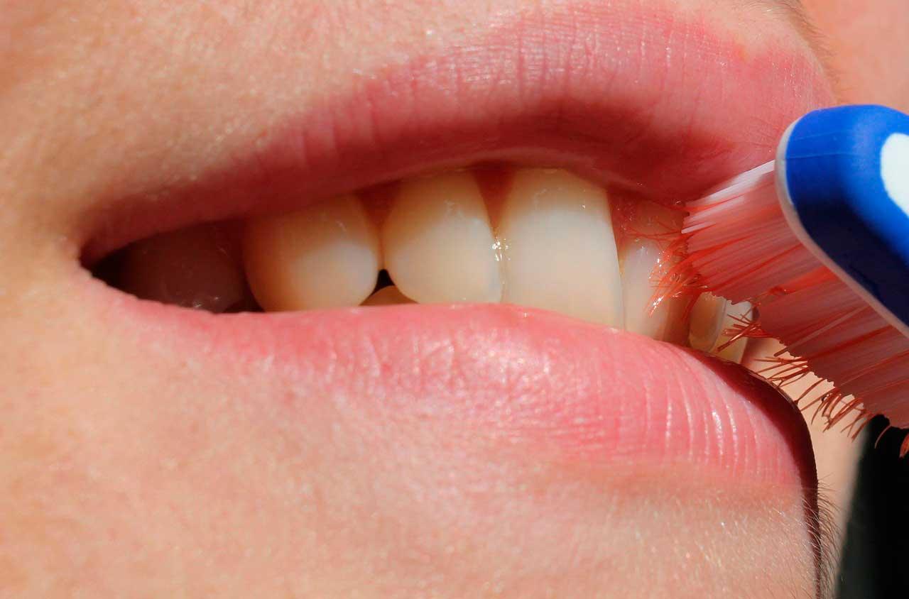 clínica dental de confianza en valencia