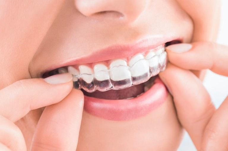 Invisalign clínica dental Pilar Rico