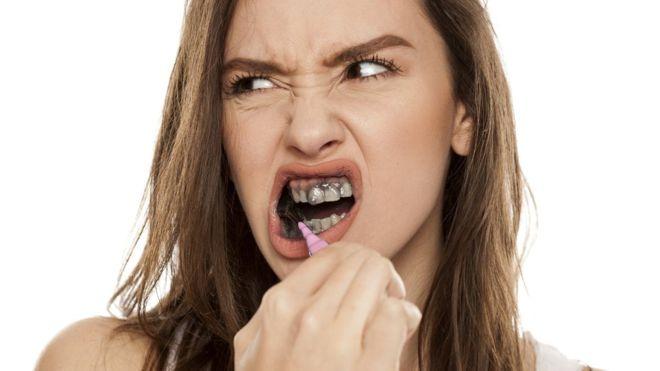 Blanqueamiento dental con carbón activado si o no