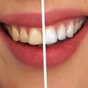 limpieza-dental-la-solucion-para-una-sonrisa-sana-y-estetica