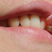 Exceso de higiene dental puede producir problemas